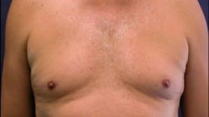 Gynecomastia and Pseudogynecomastia